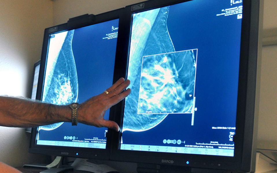 Ακόμη και οι νέας τεχνολογίας τρισδιάστατες μαστογραφίες θα πρέπει να πραγματοποιούνται με μικρότερη συχνότητα, σύμφωνα με τις νέες κατευθυντήριες γραμμές της αμερικανικής αντικαρκινικής εταιρείας.