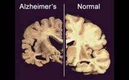 Αριστερά, εγκέφαλος που νοσεί από Αλτσχάιμερ· δεξιά, ο υγιής εγκέφαλος: ο άνθρωπος είναι σωματικά παρών, μα απουσιάζει από τον εαυτό του, απουσιάζει από τους άλλους.