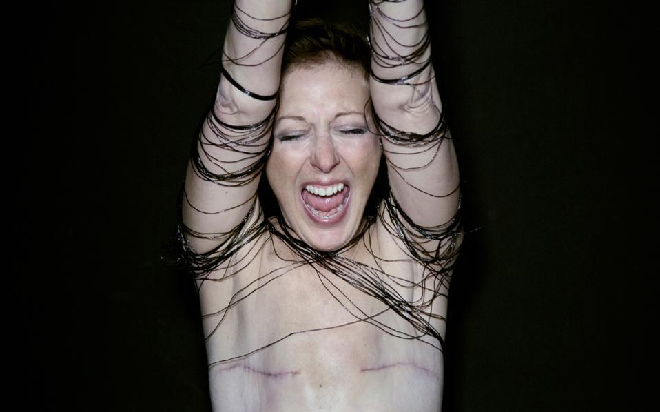 Πολλές γυναίκες, όπως η Μαριάν Ντικέτ Κουόζο, επιλέγουν να «μείνουν επίπεδες» μετά τη μαστεκτομή.
