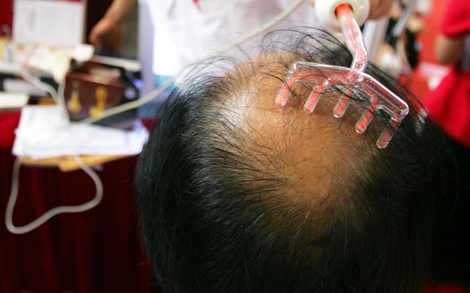 Μεγάλες προσδοκίες ακόμα και για γενετικές θεραπείες κατά της φαλάκρας.