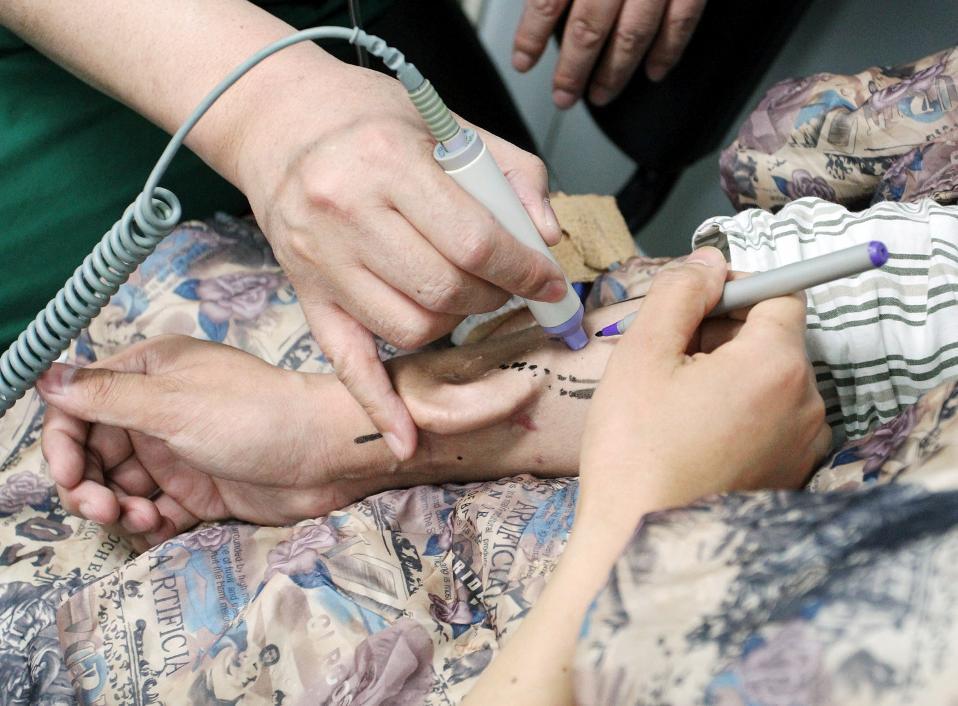 «Κυοφορώ το αυτί μου». Δεν είναι η πρώτη φορά που ένα τέτοιο όργανο φτιάχνεται τεχνητά. Ο ασθενής είχε την ατυχία να χάσει το δεξί του αυτί μετά από ατύχημα και οι ιατροί του Πανεπιστημιακού Νοσοκομείο Xi'an Jiaotong της Κίνας, έχοντας καταφέρει να ολοκληρώσουν την δημιουργία ενός νέου οργάνου που μεγάλωσε στο μπράτσο του ασθενή, θα προχωρήσουν στην τοποθέτησή του. China Daily via REUTERS