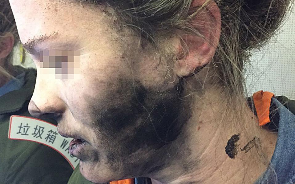 Σοκαριστική είναι η φωτογραφία της νεαρής κοπέλας που κάηκε από έκρηξη των ακουστικών.