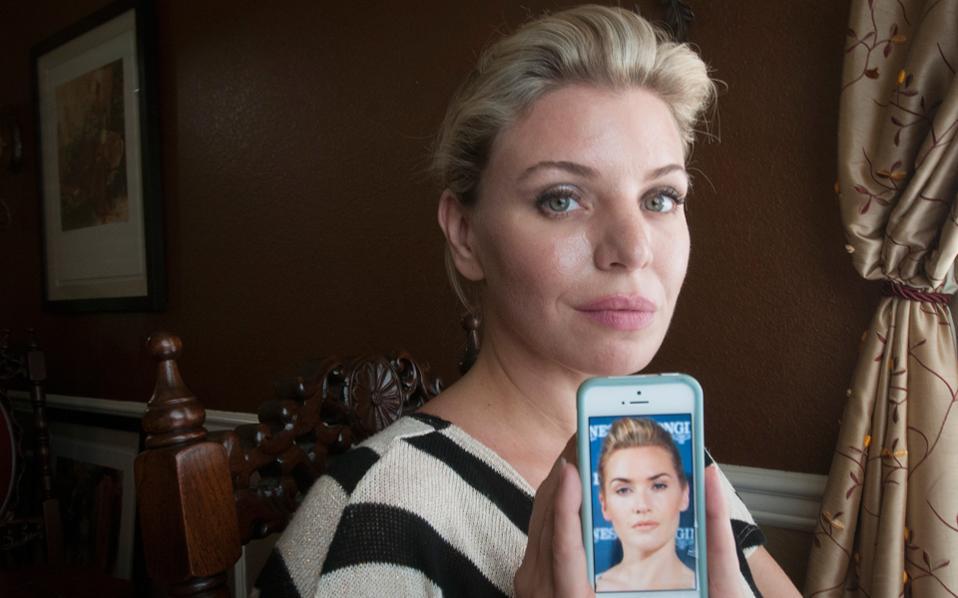 Η Ντέμπορα Ντάβενπορτ κάνει διαδοχικές επεμβάσεις για να μοιάσει στην ηθοποιό Κέιτ Ουίνσλετ.