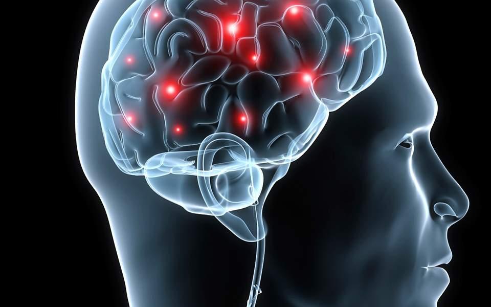 brain_21199171